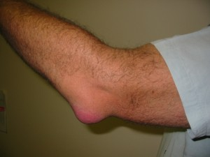 Bursitis_Elbow_WC